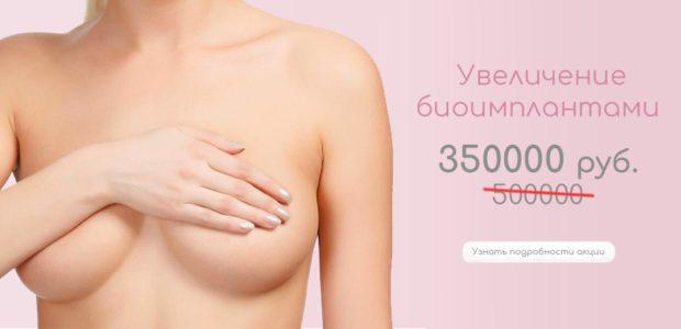 Увеличение груди биоимплантами ARION CMC HYDROGEL MONOBLOC со скидкой!